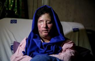 عاملان پرونده اسیدپاشی اصفهان هنوز شناسایی نشده اند